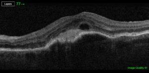Verschwommen sehen - Altersbedingte Makuladegeneration