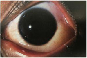 Allergie und Augen